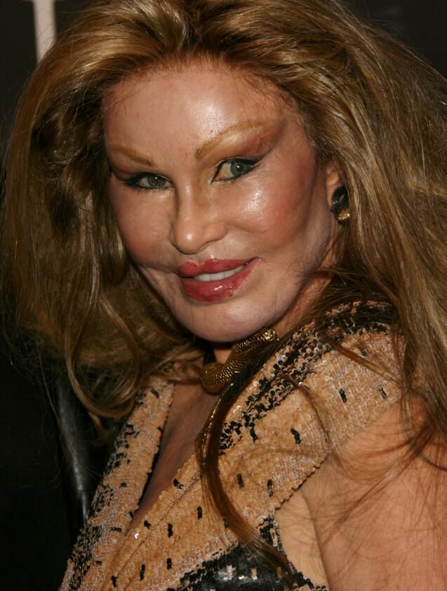 VERDENSKJENT: Jocelyn Wildenstein fikk med seg milliarder da hun skilte seg i 1999. Nå er hun kanskje mest kjent for sitt karakteristiske utseende. Foto: NTB scanpix