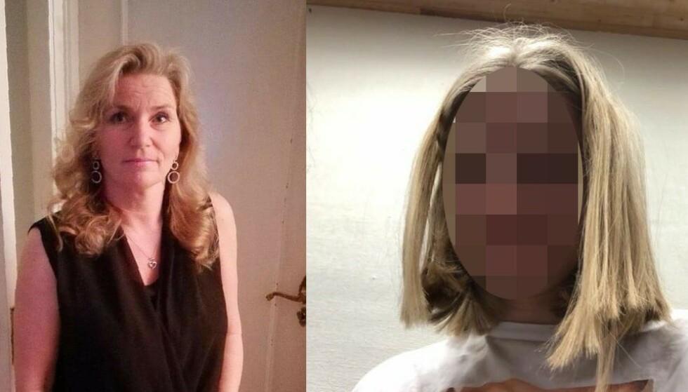 <strong>ADVARER:</strong> Lise Brantzæg advarer foreldre mot å sende barna sine på Cutters, etter at dattera kom hjem som dette. Foto: Privat