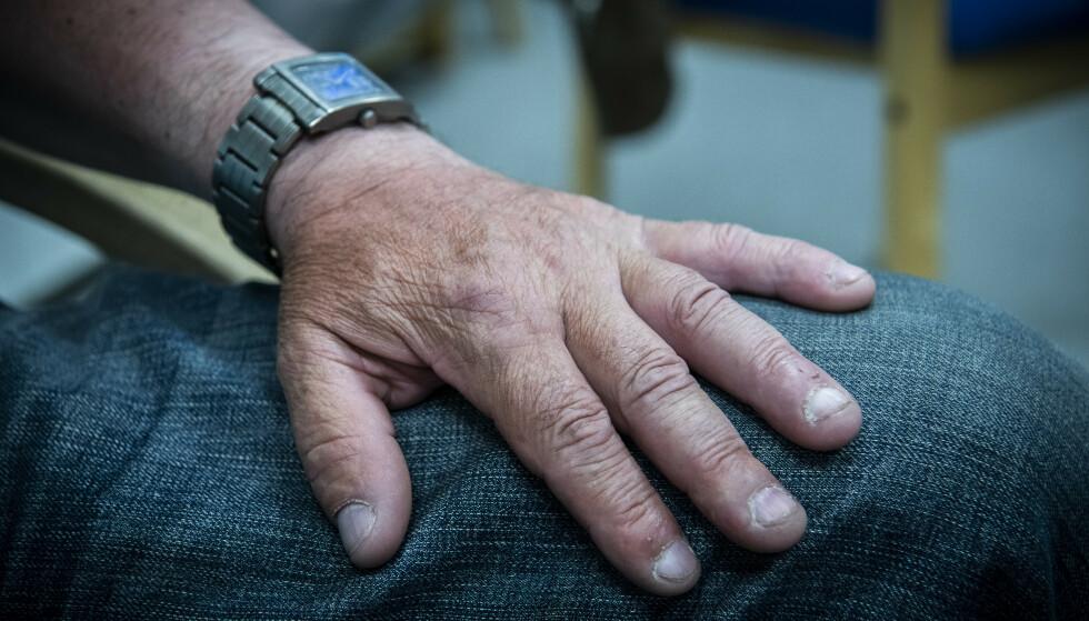 ARBEIDSULYKKE: Venstehånda til Kazimierz ble knust i en arbeidsulykke i 2018. Det var da han gradvis skulle tilbake i jobb igjen at problemene startet. Foto: Lars Eivind Bones / Dagbladet
